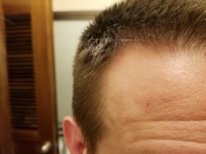 Mole on my forehead